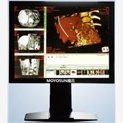 供应MOYOSUN魔言MYC21(1M)X光机医用显示器